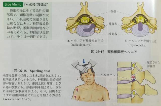 頸椎ヘルニアの徴候