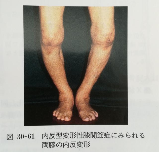 変形性膝関節症によるO脚変形