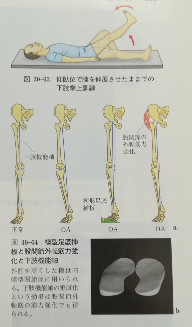 変形性膝関節症の考察